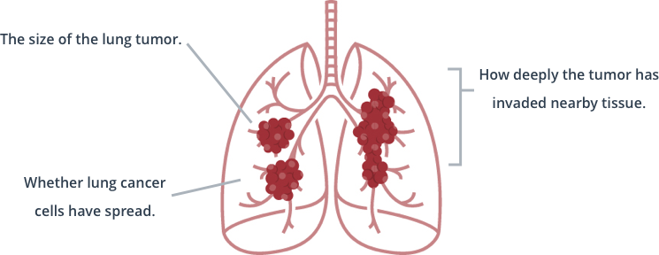 The stage or progression of lung cancer is determined by the size of the lung tumor, how deeply the tumor has invaded nearby tissue, and whether lung cancer cells have spread.