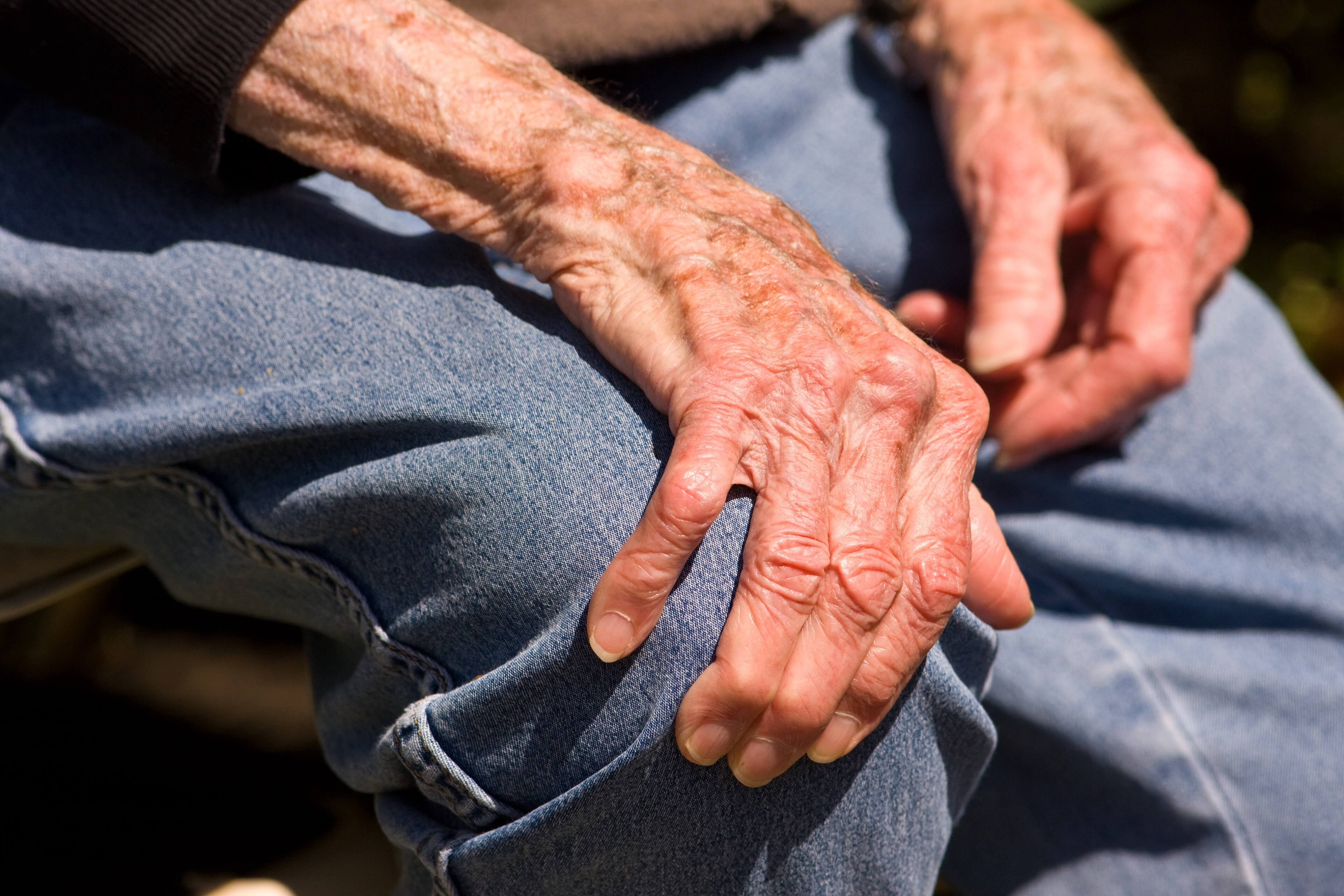 Elderly man holding knee with arthritis