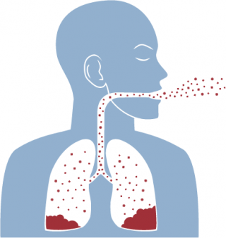 Asbestosis is a chronic lung condition caused by asbestos exposure.