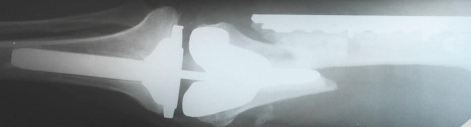 x-ray of broken thigh bone