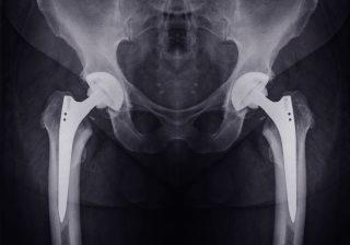X-ray of hip implants.