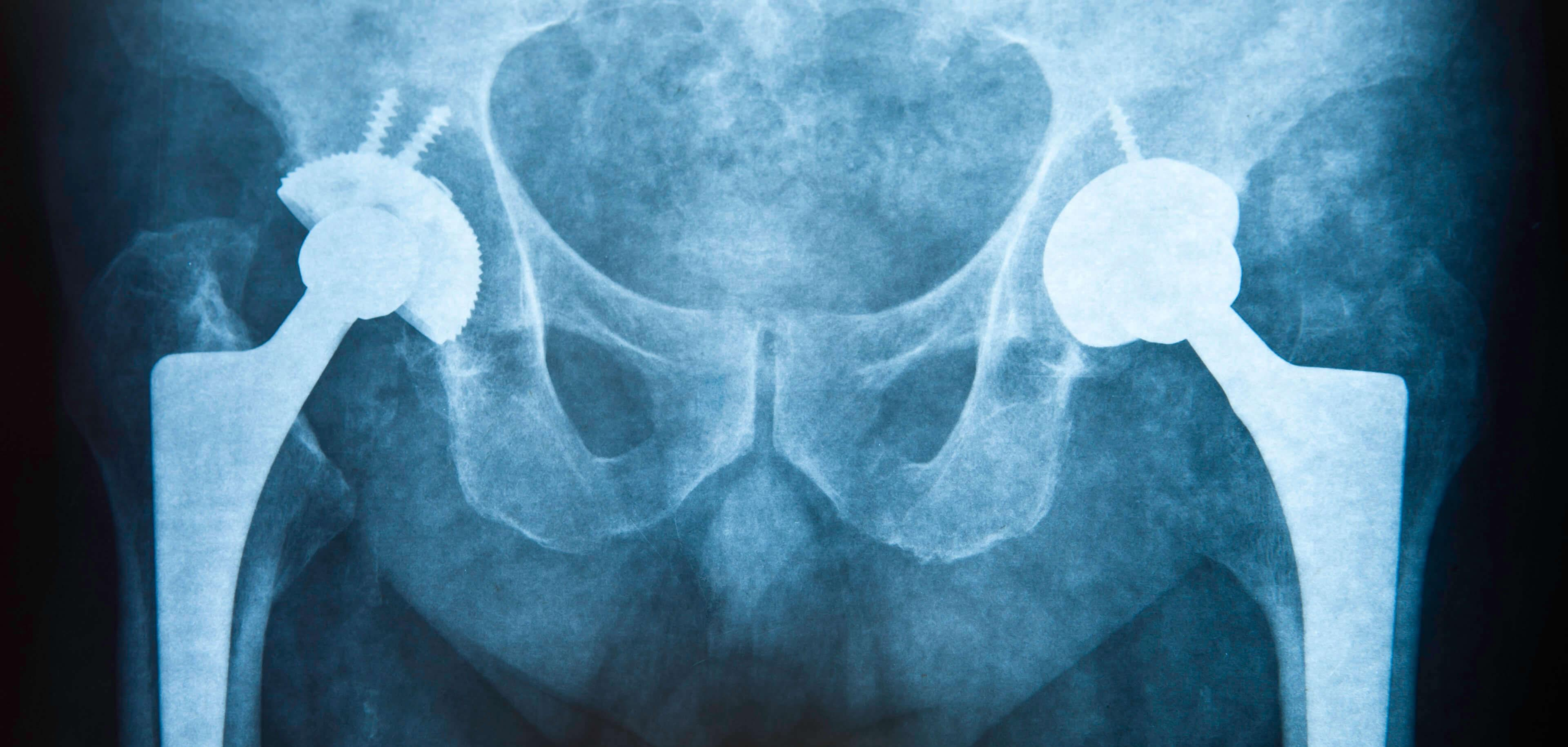 Metal hip implant
