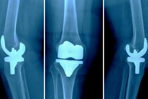 W&L accepting cases for DePuy knee replacement failure.