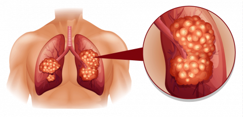 Surgery for pleural mesothelioma